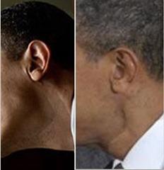 obama-neck scar7