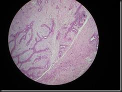 fibroadenoma high resolution histology slide tsnaps