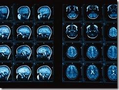 brain-mri_848_600x450