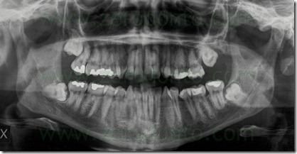 1 radiografia panoramica ottavo incluso