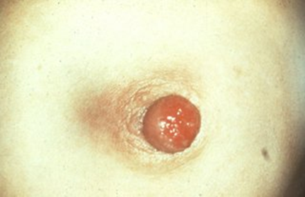 Pagets disease of the nipple