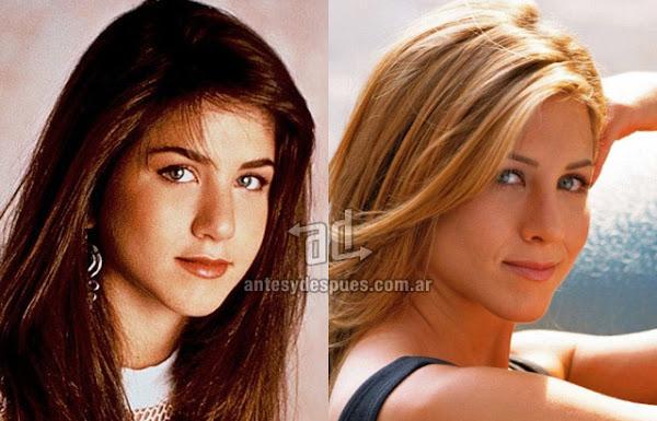 La nueva nariz operada de Jennifer Aniston