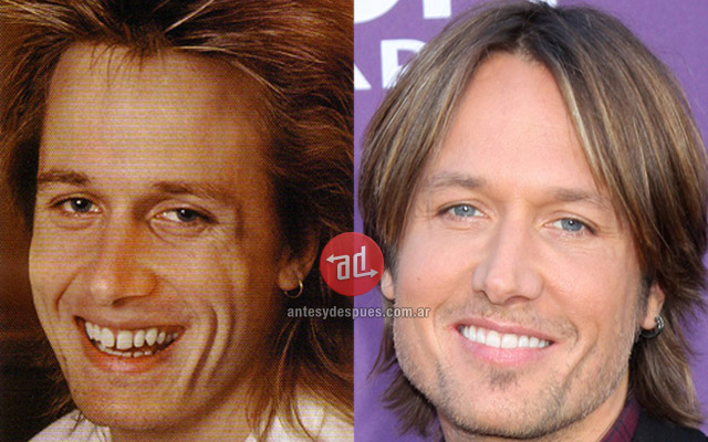 New teeth of Keith Urban