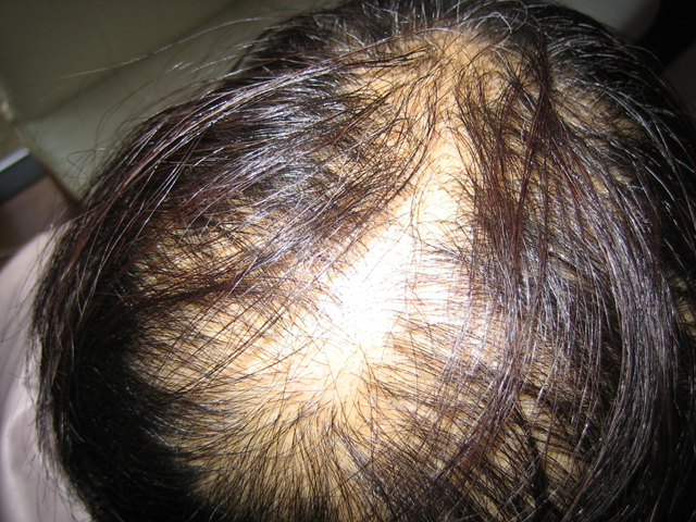 Sudden hair loss in a woman who lives in Minami Soma and was exposed to Fukushima fallout. Numayu no blog http://blogs.yahoo.co.jp/kmasa924