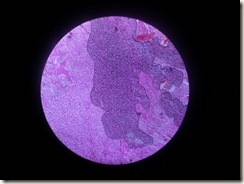 osteosarcoma histology slide
