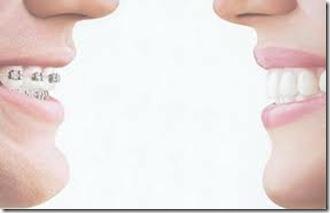 precios de ortodoncia ligual en mexico argentina costos cirugia barata
