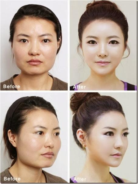 korean-plastic-surgery-22