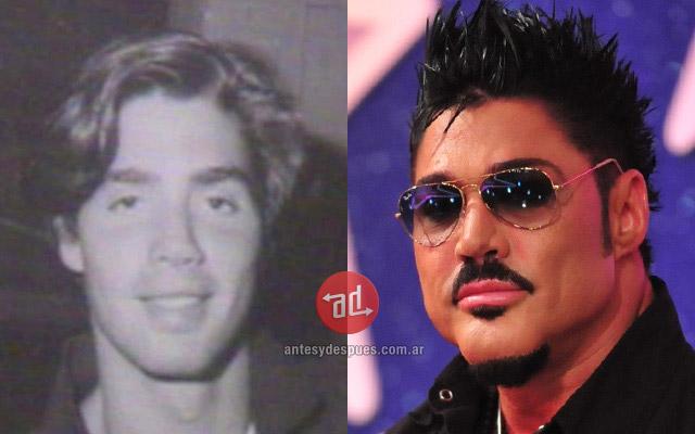 Foto del aumento de labios de Ricardo Fort