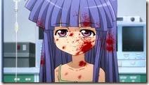 Higurashi Outbreak-18