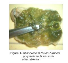 tumor vesícula