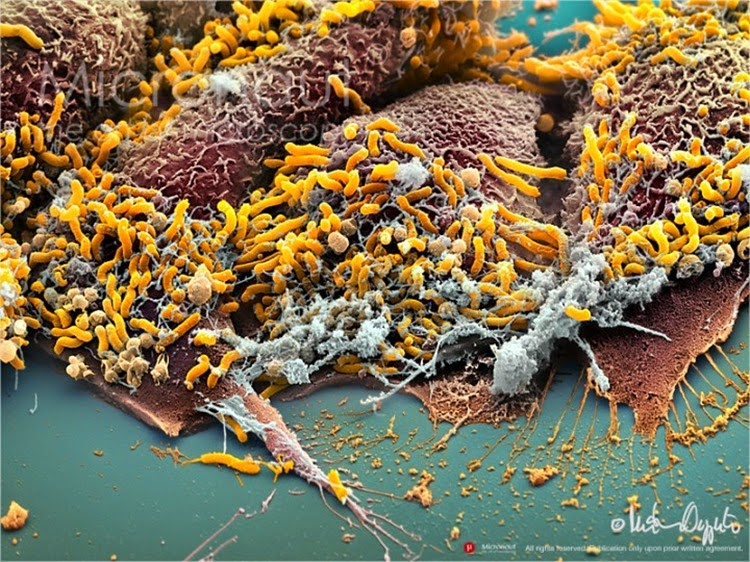 Helicobacter pylori (amarelo)
