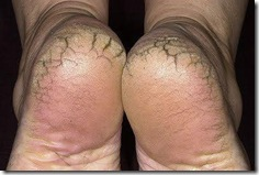 pies resecos fisuras o grietas en la planta