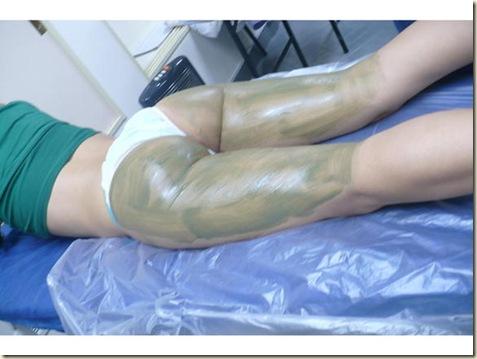 tratamiento de la celulitis3