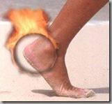 heel-burning