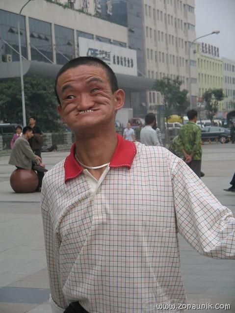 Gigit hidung (3)