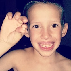 Lost Tooth, Hudson
