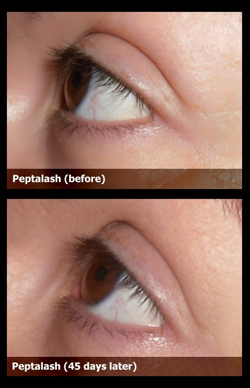 02-peptalash-before-after-result-photo