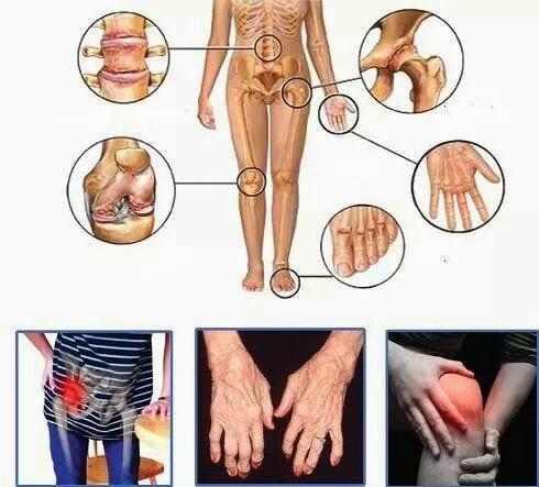 Penyakit tulang sendi