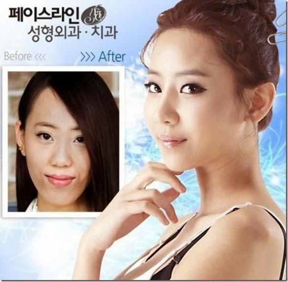 korean-plastic-surgery-40