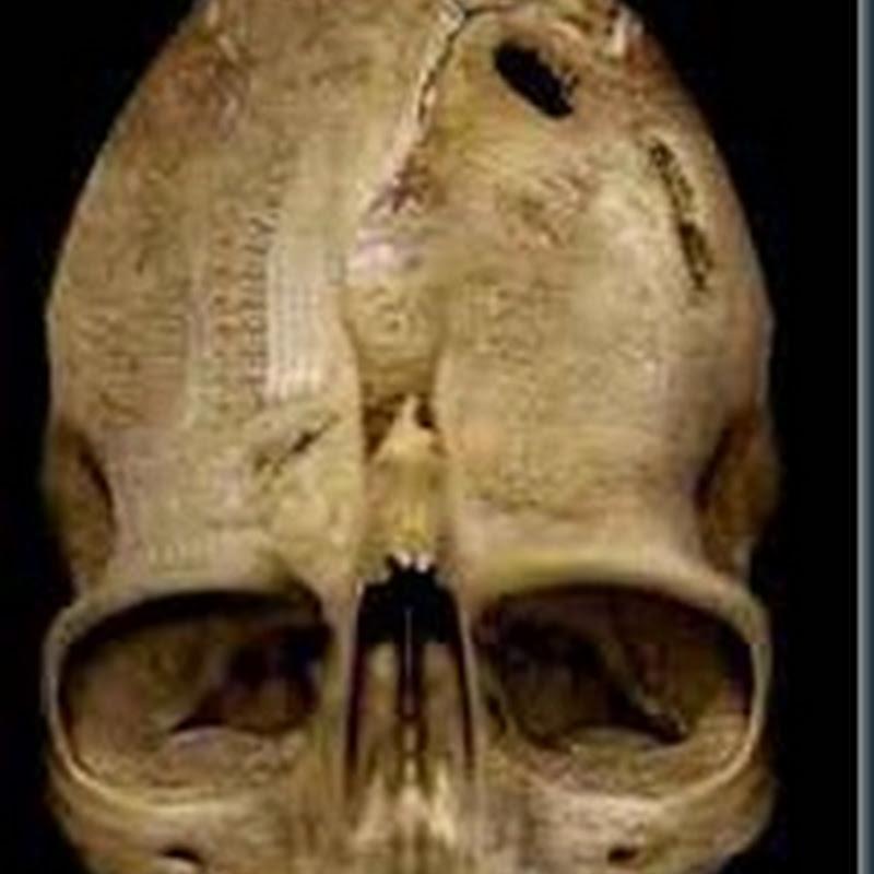 O Crânio de Andover