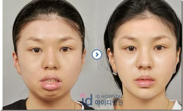 korean-plastic-surgery-43