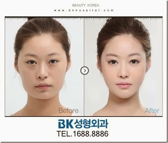 korean-plastic-surgery-16
