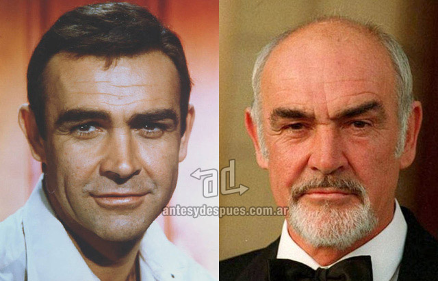 Hair Loss Before &amp; After of  Sean Connery