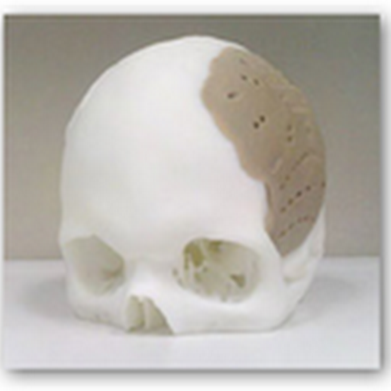 Man Has 75% of His Skull Replaced and Implanted–Replication Done with FDA Approved 3-D Printing Process From OPM