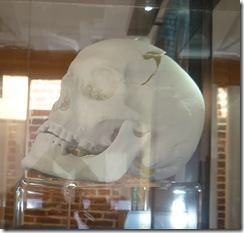 RIII 3d printed skull reconstruction
