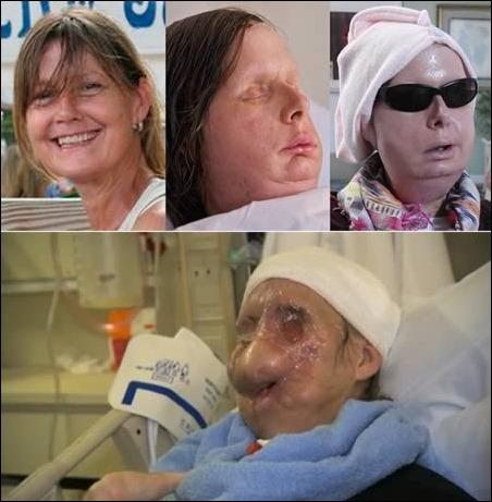 transformation_6-face-transplant
