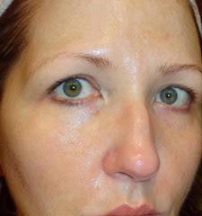 before using SkinPhD_face