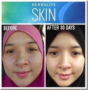 testimoni kulit skin