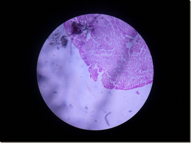 sq cell carcinoma