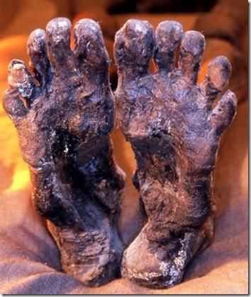 Ugly feet