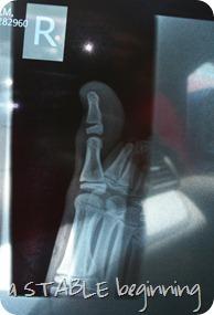 Broken toe 017