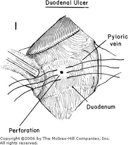 Zollinger Atlas Of Surgery Closure Of Perforation Subphrenic Abscess