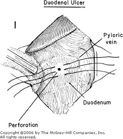 Zollinger Atlas of Surgery: CLOSURE OF PERFORATION