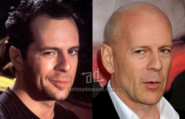 Hair Loss Before &amp; After of  Bruce Willis
