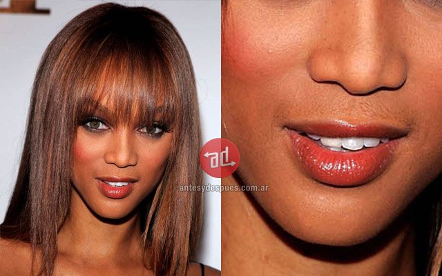 Photo of Tyra Banks with upper lip hair