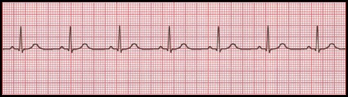 ECG-12-leads-normal-sinus-rhythm