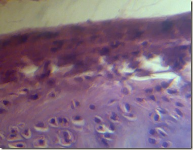 Hyaline cartilage magnified microscopic view