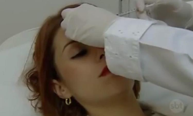 Aplicação de toxina botulínica tipo A