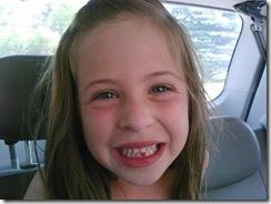 chloe tooth