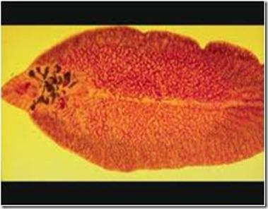 Clonorchis Sinensis 1