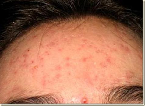 acne14[2]