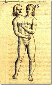 dicephalus
