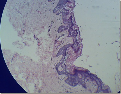 Stratified squamous keratinized epithelium the magnified microscopy