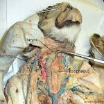larynx_L.JPG