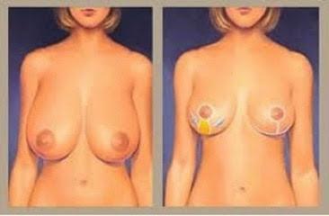 Mamoplastia-redutora