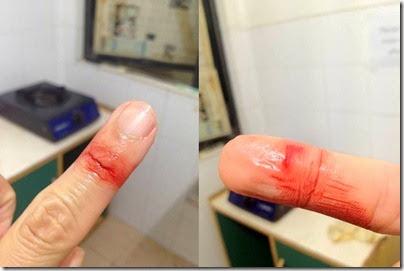 Bad fingers